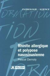 Rhinite allergique et polypose nasosinusienne