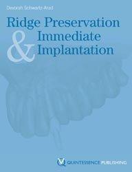 Ridge Preservation and Immediate Implantation