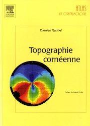 Topographie cornéenne