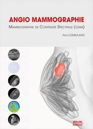Angio Mammographie - med-line - 9782846782593 -