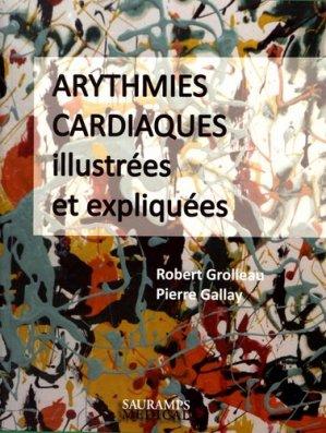 Arythmies cardiaques illustrées et expliquées - sauramps medical - 9791030300932