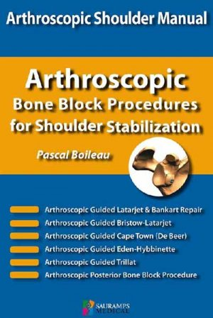 Arthroscopic bone block procedures for shoulder stabilization - sauramps medical - 9791030301663 -