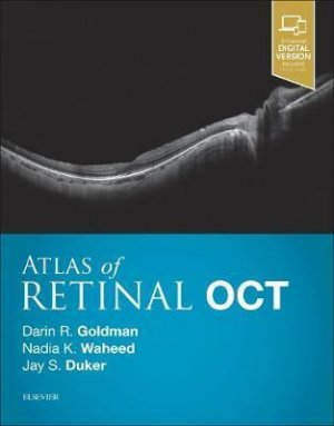 Atlas of Retinal OCT - elsevier / masson - 9780323461214 -