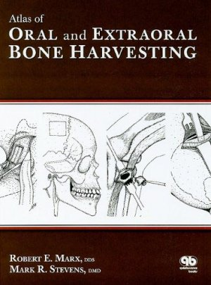 Atlas of Oral and Extraoral Bone Harvesting - quintessence publishing - 9780867154825 -