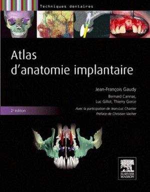 Atlas d'anatomie implantaire - elsevier / masson - 9782294713798 -