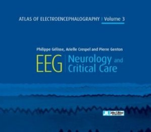 Atlas of electroencephalography - volume 3 - Neurology and critical care - john libbey eurotext - 9782742015795 -