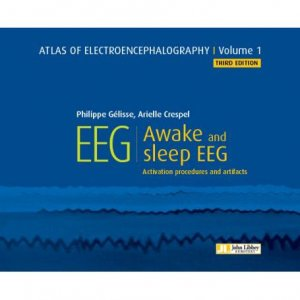Atlas of electroencephalography - Tome 1, Awake and sleep eeg - john libbey eurotext - 9782742015900 -