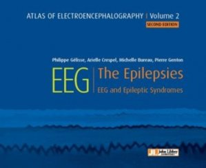 Atlas of electroencephalography Volume 2 : The Epilepsies - john libbey eurotext - 9782742015917