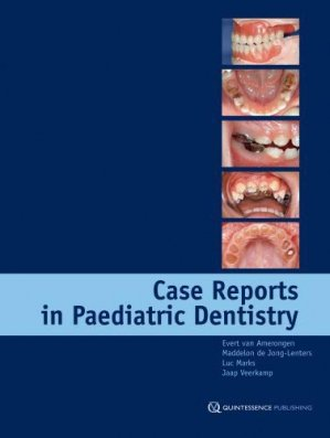 Case Reports in Paediatric Dentistry - quintessence publishing - 9781850971962 -