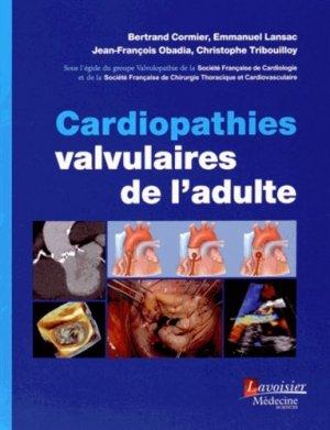 Cardiopathies valvulaires de l'adulte - lavoisier msp - 9782257205964 -