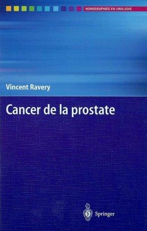 Cancer de la prostate - springer verlag - 9782287597459 -