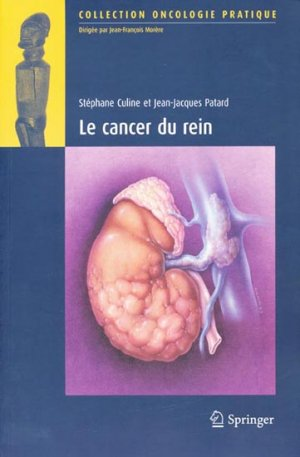 Cancer du rein - springer - 9782287716508 -