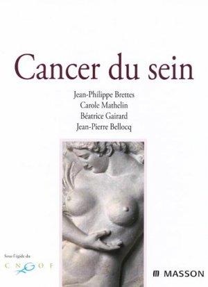 Cancer du sein - elsevier / masson - 9782294018138 -