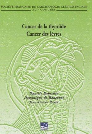 Cancer de la thyroïde- Cancer des lèvres - edk - 9782842541378 -