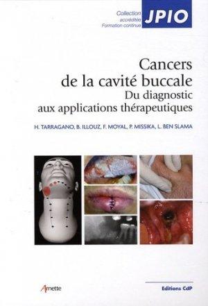 Cancers de la cavité buccale - cdp - 9782843611292 -