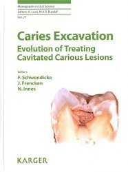 Caries Excavation: Evolution of Treating Cavitated Carious Lesions - karger  - 9783318063684