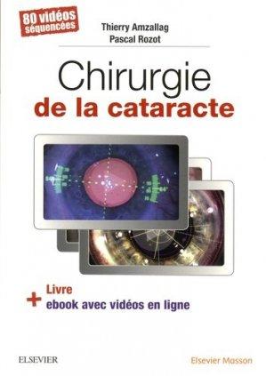 Chirurgie de la cataracte - elsevier / masson - 9782294757372 -