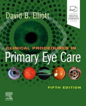 Clinical Procedures in Primary Eye Care - elsevier science publishing - 9780702077890 -