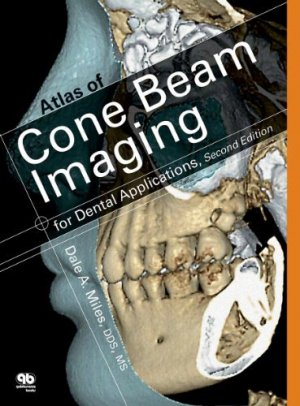 Color Atlas of Cone Beam Volumetric Imaging for Dental Applications - quintessence publishing - 9780867155655 -