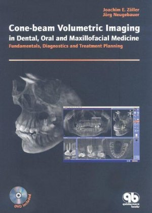Cone-Beam Volumetric Imaging in Dental, Oral and Maxillofacial Medicine - quintessence publishing - 9781850971689 -
