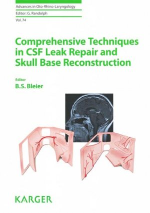 Comprehensive Techniques in CSF Leak Repair and Skull Base Reconstruction - karger  - 9783805599528 -