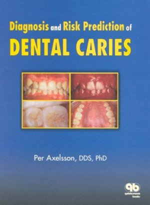 Diagnosis and Risk Predication of Dental Caries - quintessence publishing - 9780867153620 -