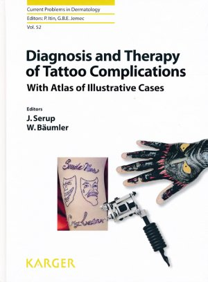 Diagnosis and Therapy of Tattoo Complications - karger  - 9783318059779 -