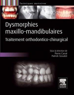 Dysmorphies maxillo-mandibulaires - elsevier / masson - 9782294710070