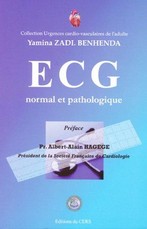 ECG normal et pathologique - du cers - 9782953877304 -