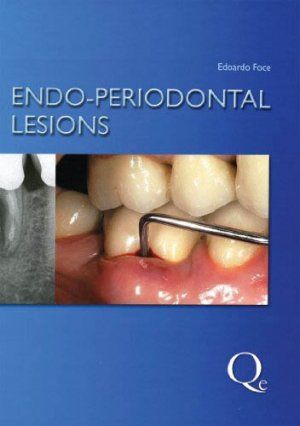 Endo-Periodontal Lesions - quintessence publishing - 9781850972105 -