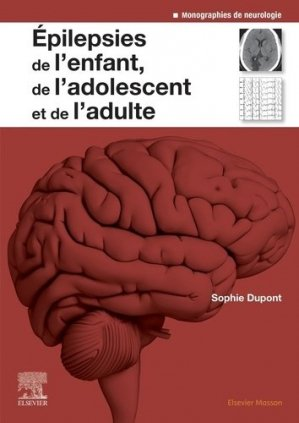 Epilepsies de l'enfant, de l'adolescent et de l'adulte - elsevier / masson - 9782294762789 -