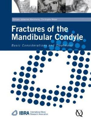Fractures of the Mandibular Condyle - quintessence publishing - 9781850971801 -