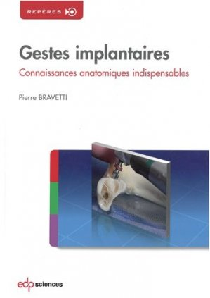 Gestes implantaires - edp sciences - 9782759804535