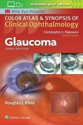 Glaucoma - wolters kluwer / lippincott williams et wilkins - 9781496363480 -