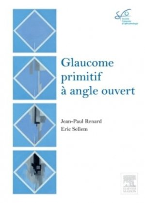 Glaucome primitif à angle ouvert-elsevier / masson-9782294740640