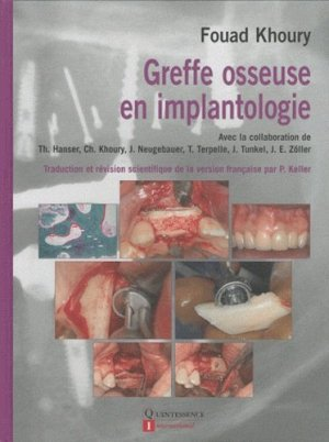 Greffe osseuse en implantologie - quintessence international - 9782912550736 -