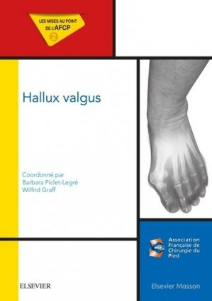 Hallux Valgus-elsevier / masson-9782294750663