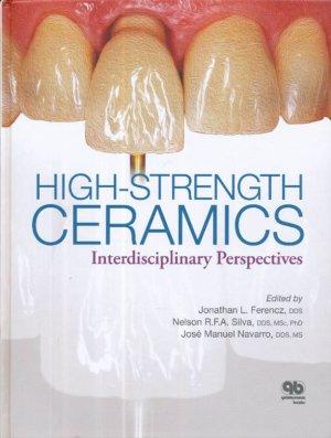 High-Strength Ceramics: Interdisciplinary Perspectives - quintessence publishing - 9780867156393