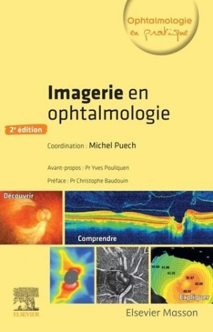 Imagerie en ophtalmologie - elsevier / masson - 9782294760167 -