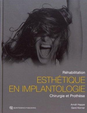 Implantologie en Secteur Esthétique - quintessence international - 9782366150520 -