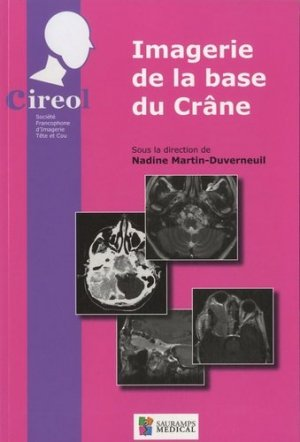 Imagerie de la base du Crâne - sauramps medical - 9782840236979 -