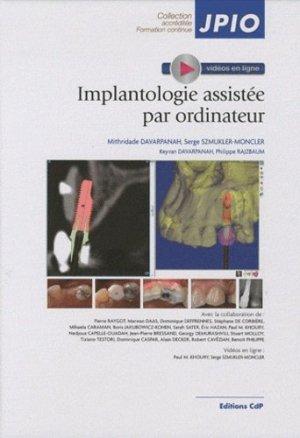 Implantologie assistée par ordinateur - cdp - 9782843611582 -