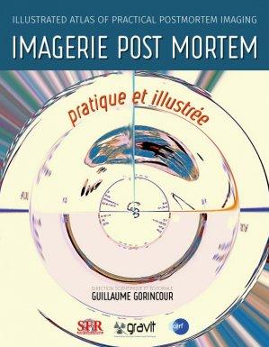 Imagerie Post Mortem pratique et illustrée - societe française de radiologie - 9782916669212 -