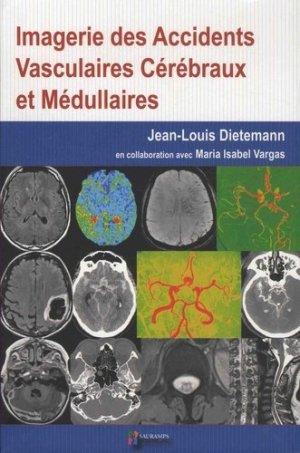 Imagerie des accidents vasculaires cérébraux et médullaires - sauramps medical - 9791030301762 -