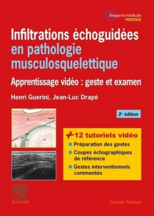 Infiltrations échoguidées en pathologie musculosquelettique - elsevier / masson - 9782294759987 -