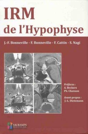 IRM de l'hypophyse - sauramps medical - 9791030301281 -