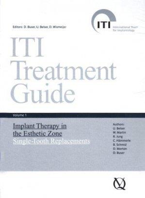 ITI Treatment Guide Volume 1 - quintessence publishing - 9783938947104
