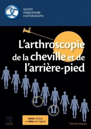 L'arthroscopie de la cheville et de l'arrière-pied - elsevier / masson - 9782294766626 -