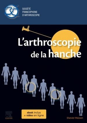 L'arthroscopie de la hanche - elsevier / masson - 9782294766633 -