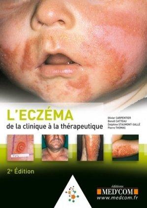 L'eczéma - med'com - 9782354032135 -